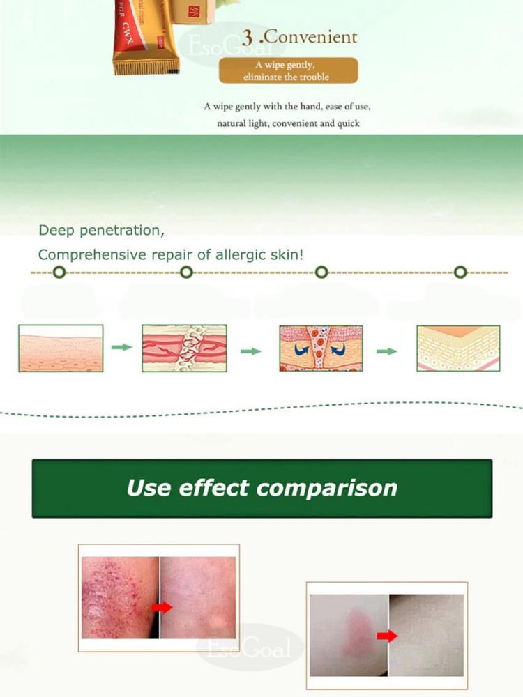 EsoGoal Natural Chinese Medicine Cream Eczema Dermatitis Psoriasis Vitiligo  Skin Disease Treatment ,1 Tube(15g)
