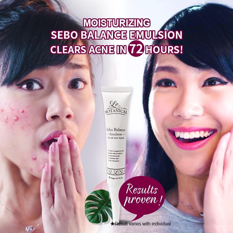 Buy Best Seller Clears Acne In 72 Hours Singapore